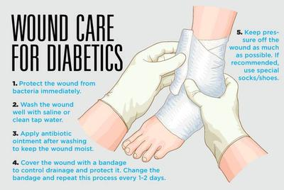 Caring For Wounds And Foot Ulcers In Diabetic Patients Sunrise