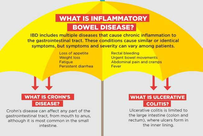 an overview of the irritable bowel syndrome in medical research Irritable bowel syndrome (ibs) guide overview symptoms & types diagnosis & treatment it's not totally clear how stress, anxiety, and irritable bowel syndrome are related research shows that therapy can help some ibs symptoms in many people who try it.